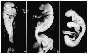17 to 23 somite human embryos